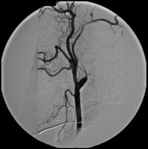 flame-shaped occlusion